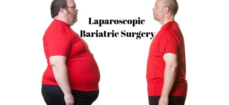 Laparoscopic-Bariatric-Surgery-870x400_c